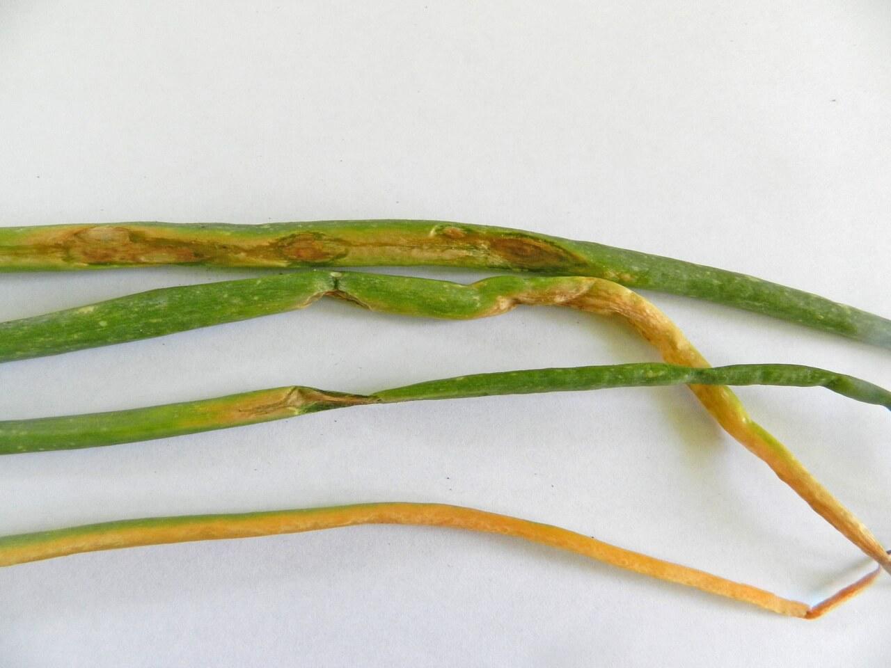 Лечение токсического гепатита лекарствами и народными средствами | компетентно о здоровье на ilive